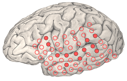 Brain with Test Sites