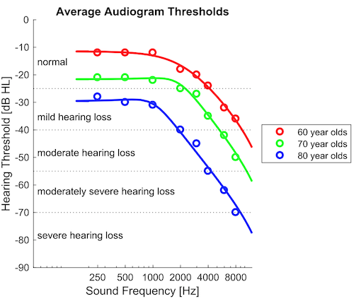 Average Hearing Loss Data